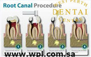 The best Root Canal Treatment  in west Perth dental centre at Australi
