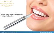 Gum-Treatment-in-West-Perth-At-Australia