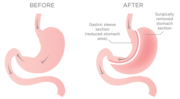 Find Gastric Sleeve Surgery Specialist in Perth,  Australia