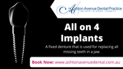 Who can Benefit from All on 4 Dental Implants?