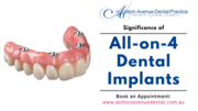 What is the Significance of All-on-4 Dental Implants?